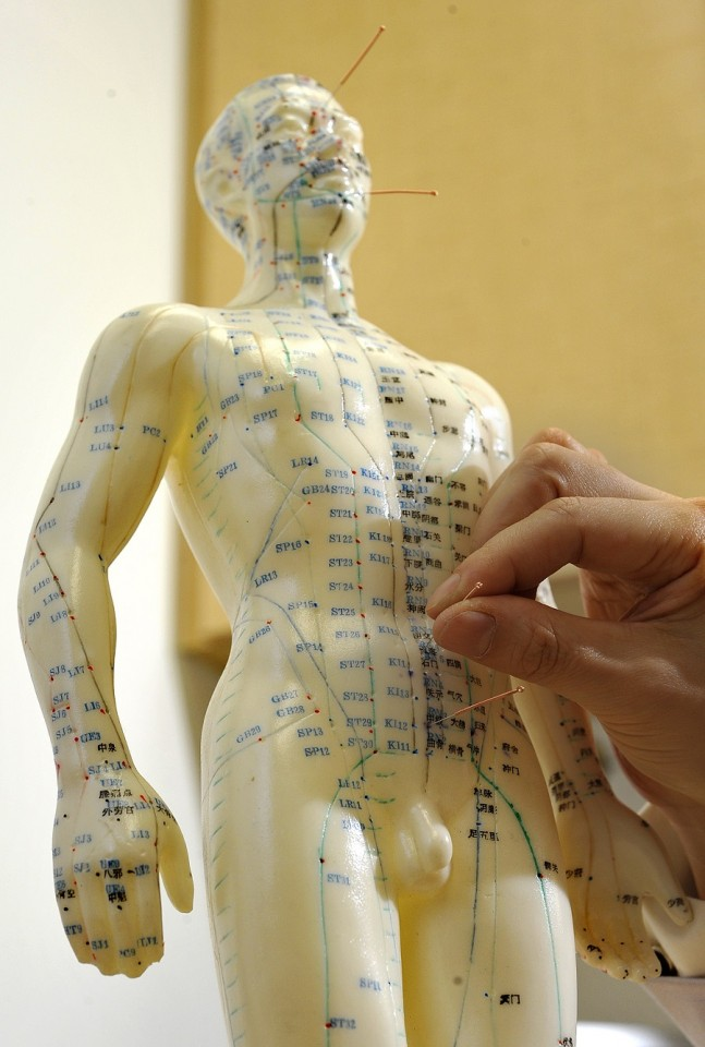 A figurine template marked with meridians and acupoint locations for acupuncture purposes. (SPH)
